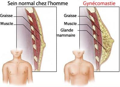 gynécomastie