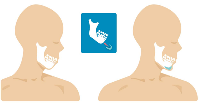 chirurgie du menton hommes