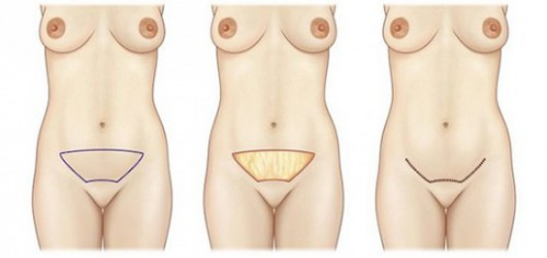 mini abdominoplastie