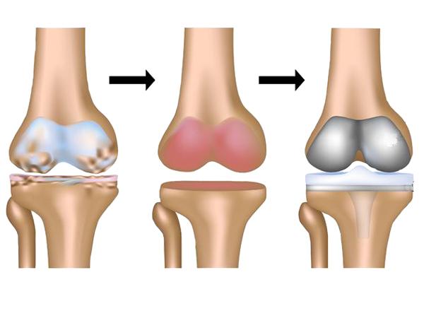 remplacement du genou